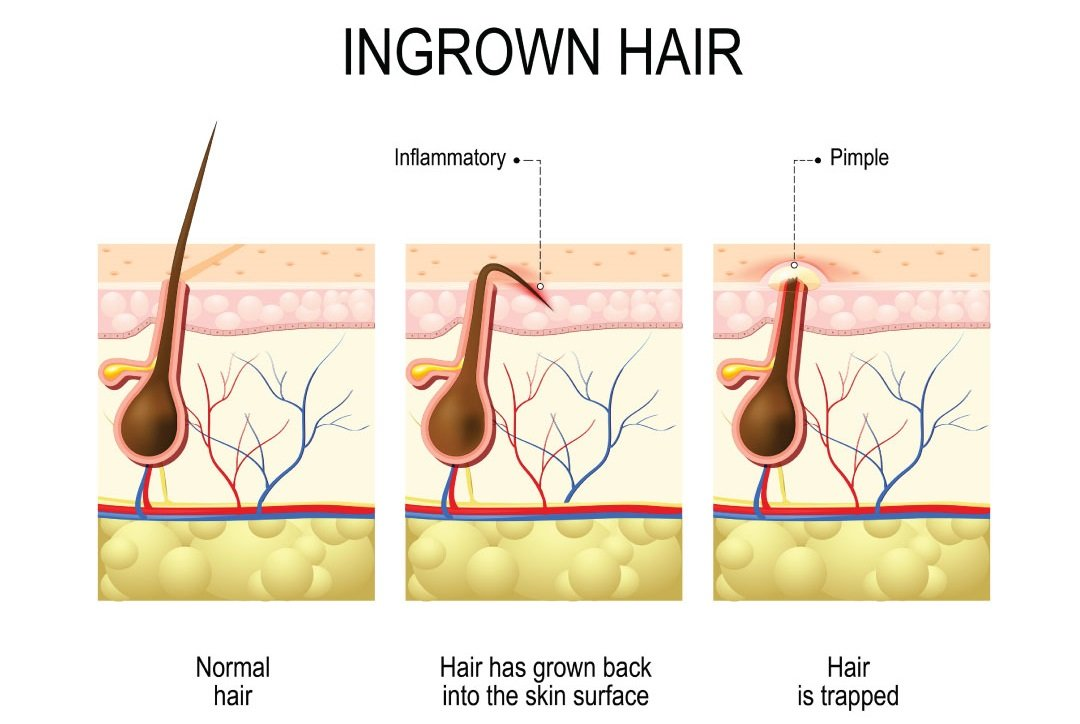 Clogged Hair Follicles or Ingrown Hair